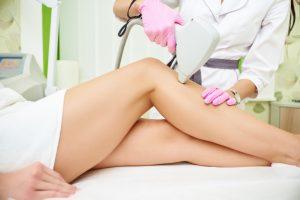 Depilazione laser zona gambe